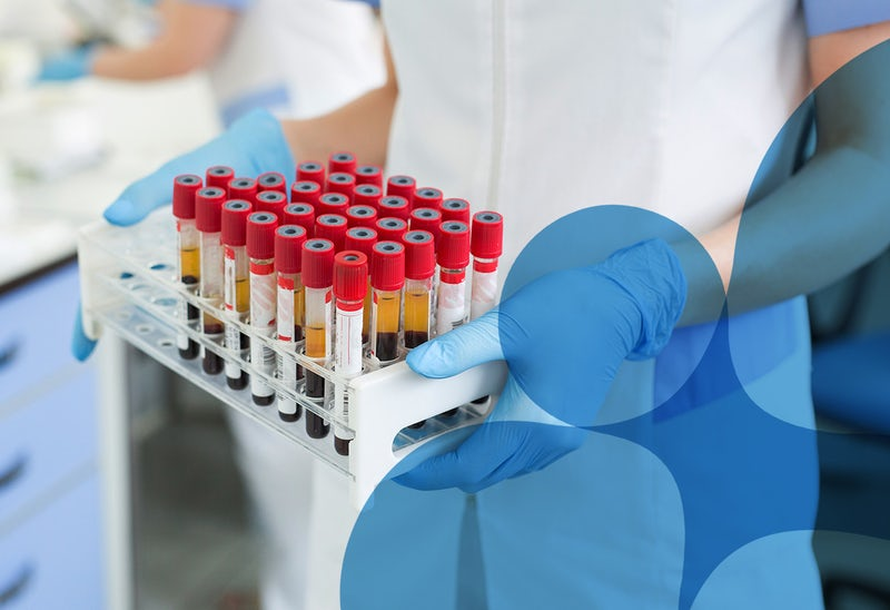 Technopath Clinical Diagnostics Launches the First Not-For-Profit COVID-19 Antibody Testing Initiative to Support Companies in Ireland