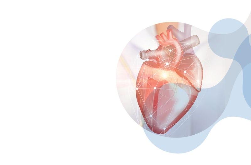 Technopath Clinical Diagnostics introduces new ultra-low concentration Multichem hsTn